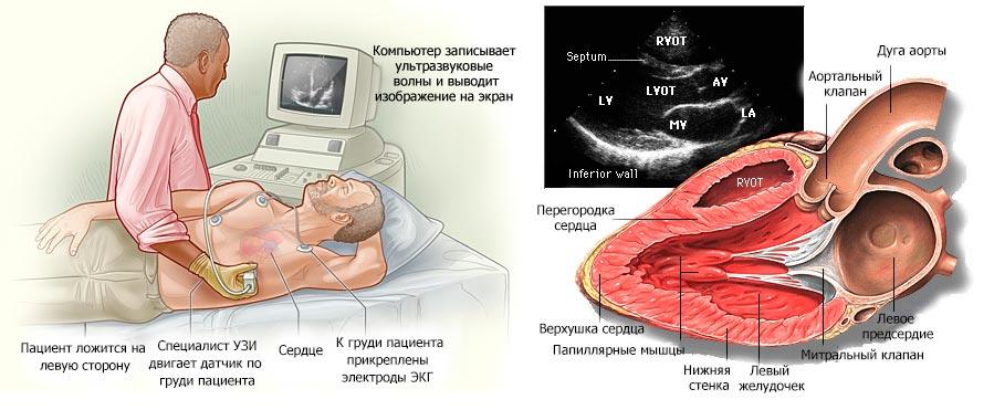 УЗИ сердца в Симферополе, ультразвуковая диагностика сердца