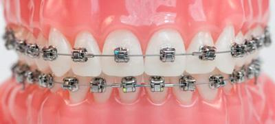 Брекет-система Damon Q - ортодонтия