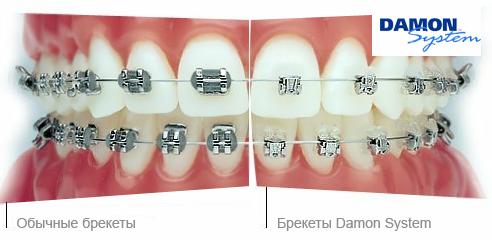Брекет-система dimon - ортодонтия