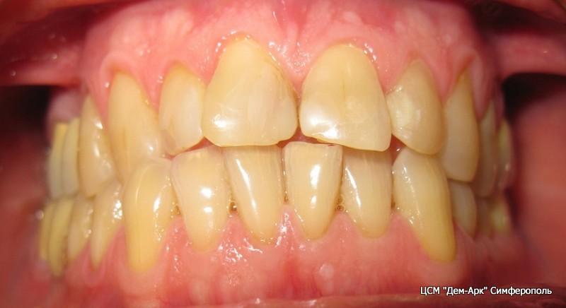 Вид зубов пациента до изготовления виниров.