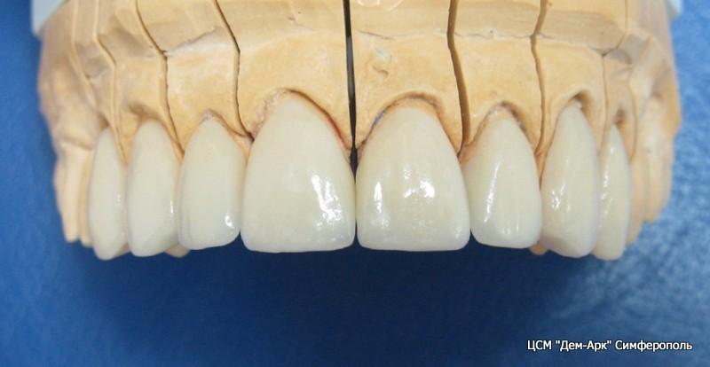 Виниры на диагностической модели челюсти пациента.