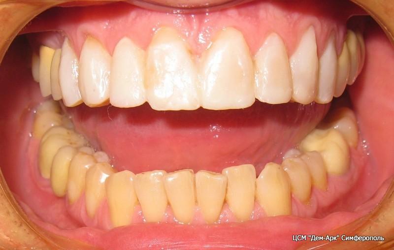 Примерка пробных виниров в полости рта. На этом этапе пациент видит свою будущую улыбку. Есть возможность коррекции формы и цвета виниров.