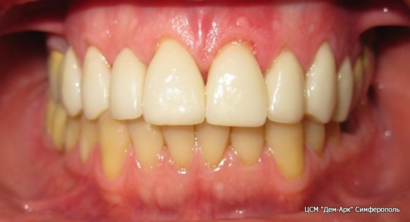 Окончательный вид верхних виниров. На очереди нижние зубы.
