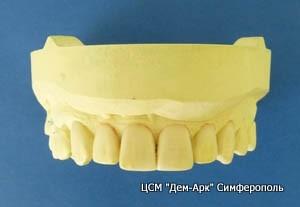Восковое моделирование зубов.