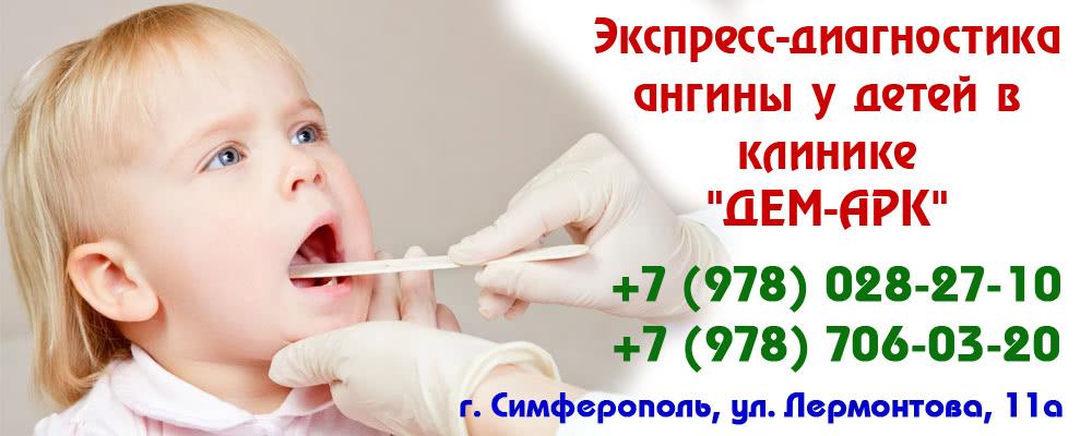 стоматология симферополь виниры